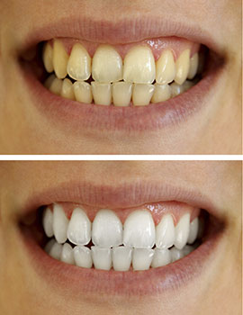 Teeth Whitening Fairfax Teeth Bleaching Cosmetic Dentistry